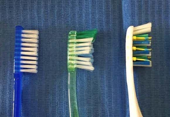Il design dello spazzolino aiuta la rimozione della placca?