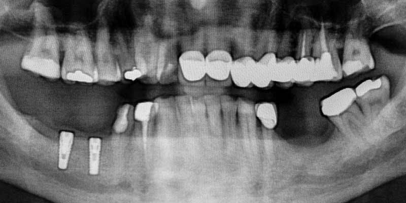 severe-periodontal-bone-loss