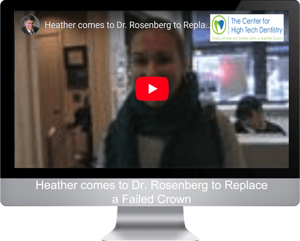 Heather comes to Dr. Rosenberg to Replace a Failed Crown