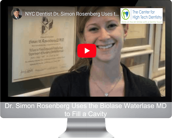 Dr. Simon Rosenberg Uses the Biolase Waterlase MD to Fill a Cavity