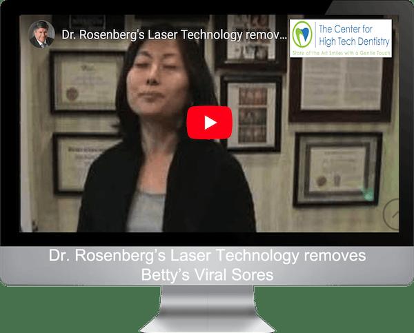 Dr. Rosenberg's Laser Technology removes Betty's Viral Sores
