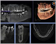 Example of a CBCT taken with the Sirona XG 3D