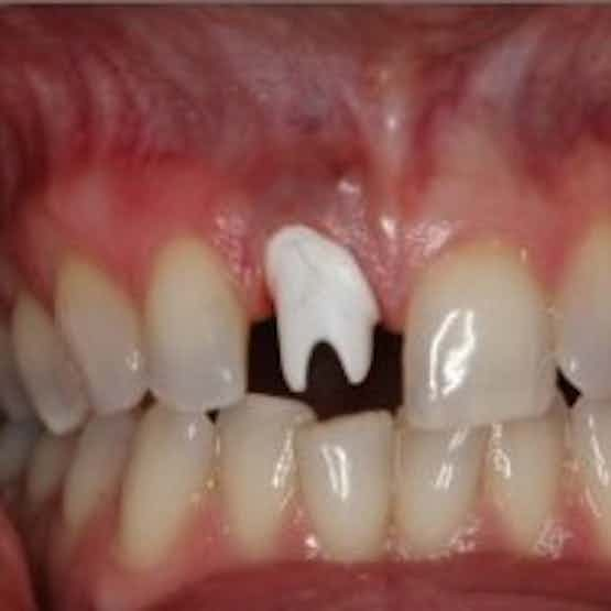 Dental Implant Restoration - Before image.