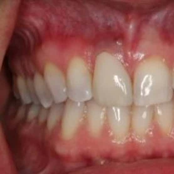 Dental implant restoration - After Image.