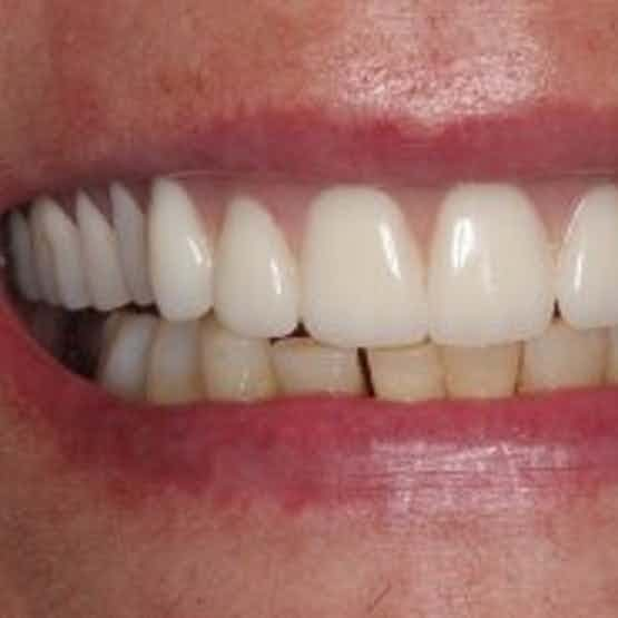 Implant Dentistry - After image.