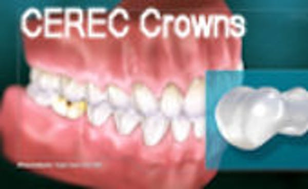 CEREC Crowns