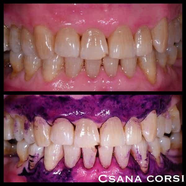 Sbiancamento dello smalto, quando i denti bianchi sono un'illusione ottica