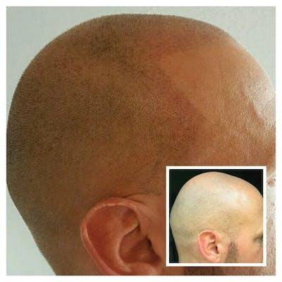 Glatzen Behandlung