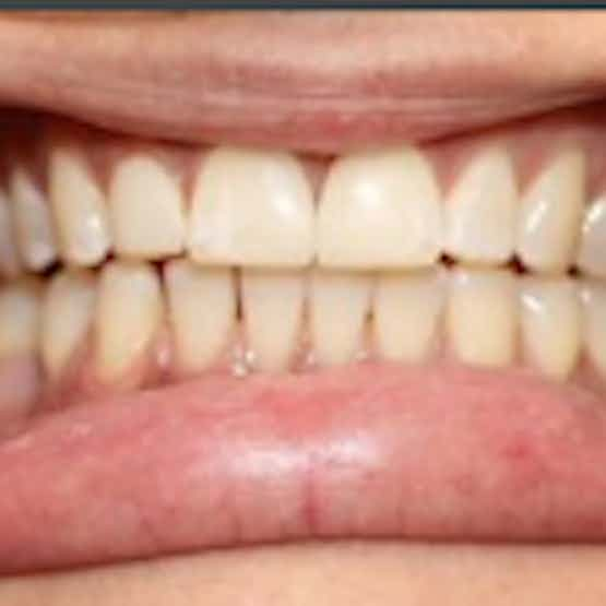 Dental Bonding - After image.