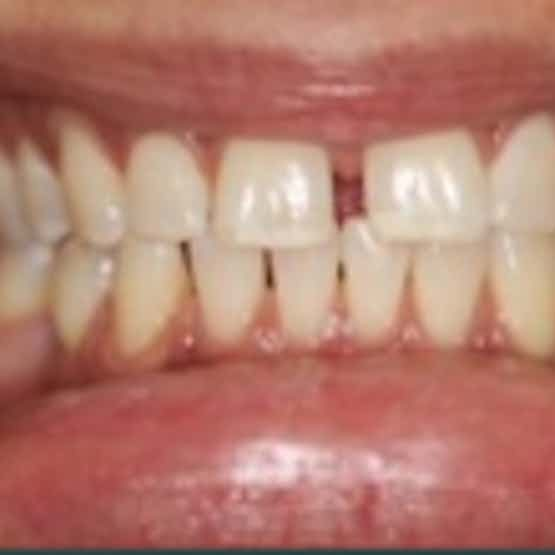 Dental Bonding - Before image.