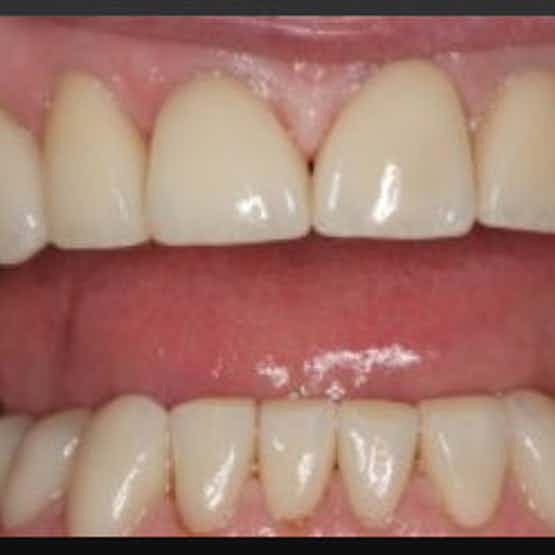 Crowns and Veneers - After image.
