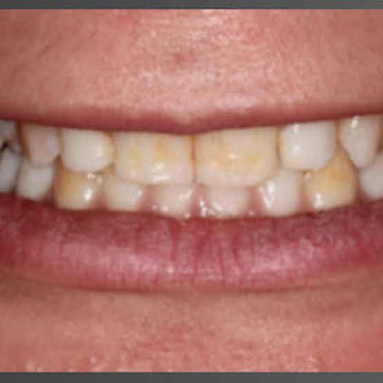 Veneers - Before image.