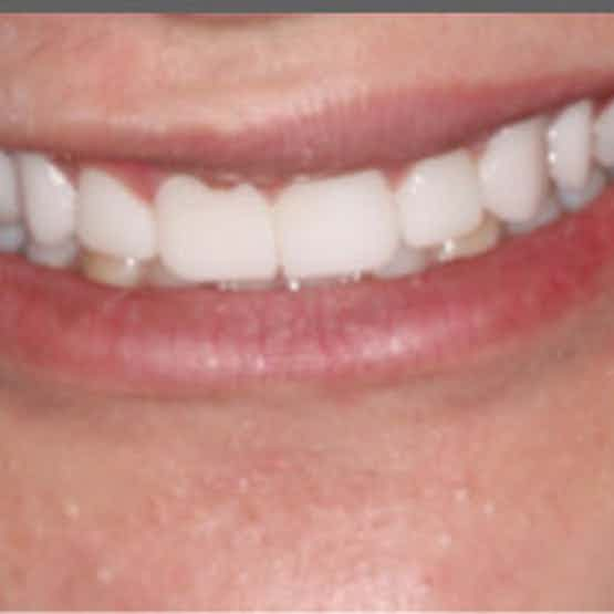 Veneers - After image.