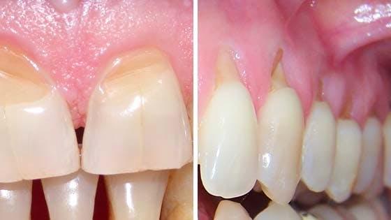 corso formazione igienisti dentali strumentazione parodontale