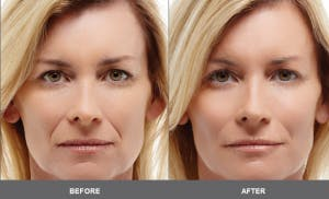 Healthy Young Skin - Regenerate with Collagen