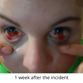 1 week after the incident
