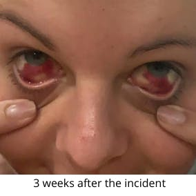 3 weeks after the incident
